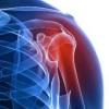 Характеристика и лечение бурсита плечевого сустава