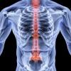 Клиническая картина и лечение остеопороза позвоночника