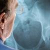 Виды, симптомы и лечение остеопороза тазобедренного сустава