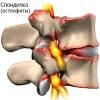 Причины, симптомы и лечение шейного спондилеза