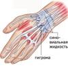 Причины, симптомы и лечение гигромы кисти руки