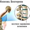 Клинические формы и симптомы болезни Бехтерева