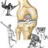 Причины, симптомы и лечение растяжения связок коленного сустава