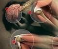 Cимптомы, причины и разновидности полиартрита