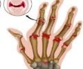 Ревматоидный полиартрит: механизм развития, симптомы и лечение