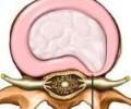 Протрузия межпозвоночного диска: причины, стадии и характерные особенности