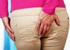 Геморрой у женщин: симптомы, лечение