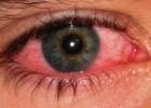 Конъюнктивит: симптомы, лечение